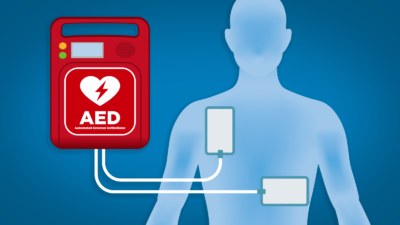 Importance of Automated External Defibrillators (AEDs)